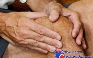 Анализы поставить диагноз артрит или артроз