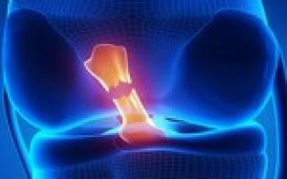 Полный разрыв передней крестообразной связки коленного сустава