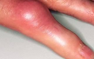 Чем лечить суставы на пальцах рук