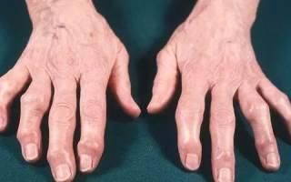 Артроз кистей рук симптомы и лечение