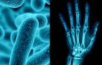Ревматоидный артрит как последствие заболевания кишечника