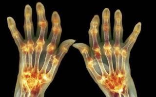 К какому врачу при артрите и артрозе