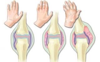 Самый эффективный способ лечения артрита