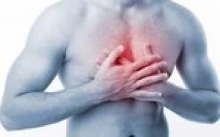 Межреберная невралгия посередине грудной клетки