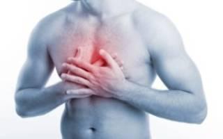 Как проявляется невралгия грудной клетки