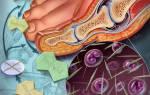 Симптомы подагрического артрита у мужчин