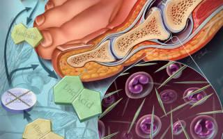 Подагра или артрит как определить