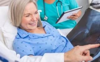 Удаление межпозвоночной грыжи отзывы пациентов
