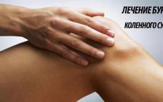 Бурсит коленного сустава лечение медикаментами
