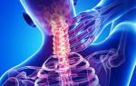 Шейная невралгия симптомы и лечение