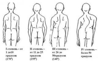 Комплекс упражнений для исправления сколиоза