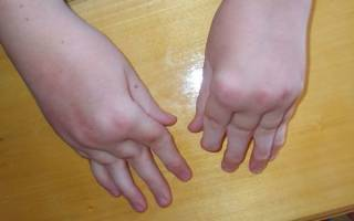 Артрит у детей до года