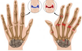 Руки при ревматоидном артрите фото