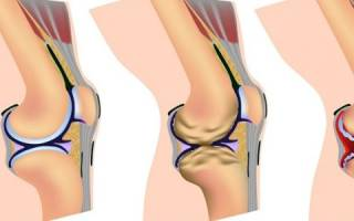 Можно ли вылечить реактивный артрит