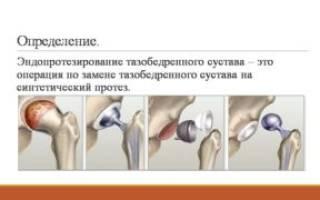 Сколько длится операция по замене тазобедренного сустава