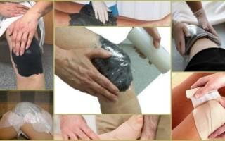 Лечение глиной в домашних условиях суставов