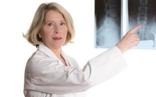 Кто лечит подагрический артрит какой врач