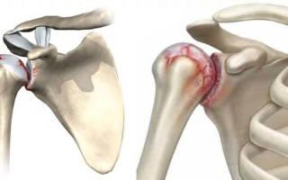 Артрит плеча лечение народными средствами
