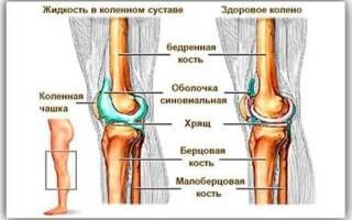 Скапливается жидкость в коленном суставе