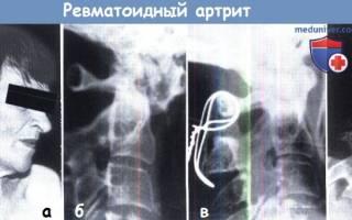 Ревматоидный артрит шейного отдела позвоночника симптомы