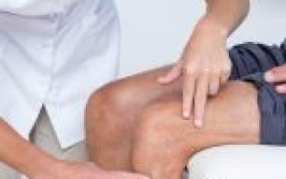 Какой специалист поможет при артрите