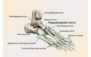 Остеохондропатия ладьевидной кости стопы у детей