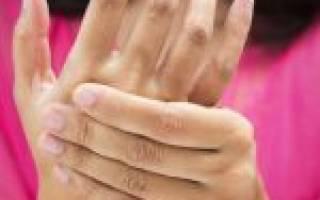 Ревматоидный артрит серонегативный развернутая стадия
