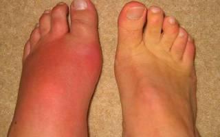 Обувь с широким носом при артрите ног