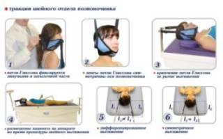 Вытягивание позвоночника при грыже в домашних условиях