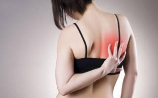 Межреберная невралгия грудной клетки симптомы и лечение