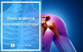 Операция на плечевом суставе привычный вывих