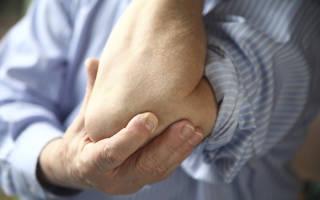 Болят суставы локтей что делать