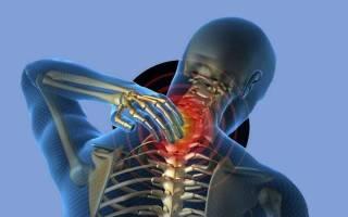 Зарядка при шейном остеохондрозе в домашних