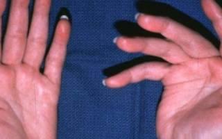 Увеличение суставов пальцев рук заболевание