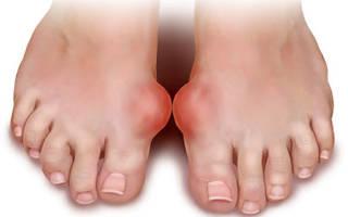 Как лечить артроз на пальце ноги
