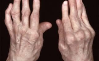 Ревматоидный артрит с системными проявлениями