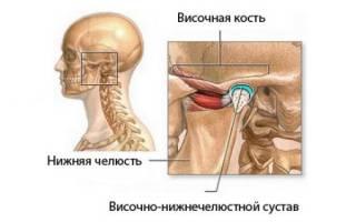 Артроз височно челюстного сустава симптомы и лечение