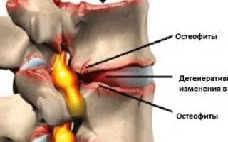 Что такое остеофиты и как их лечить