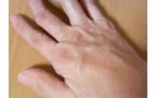 Воспалился сустав на пальце руки лечение в домашних условиях