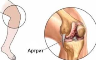 Артрит симптомы и лечение у взрослых