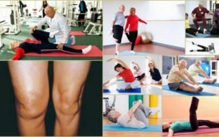 Советы доктора бубновского при артрозе колена