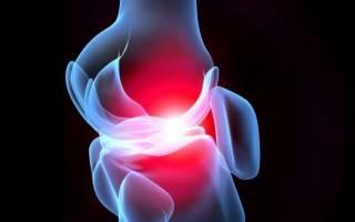 Когда коксартроз может болеть нога