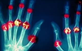 Ревматоидный артрит симптомы причины возникновения лечение фото