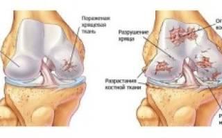 Почему суставы и кости трещат