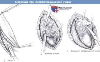 Операция по удалению послеоперационной грыжи брюшной полости