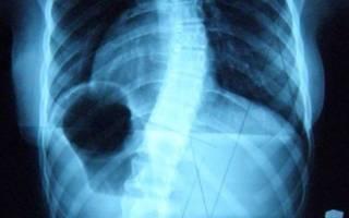 Сколиоз боли в грудной клетке
