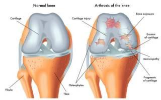 Мазь для колена при артрозе