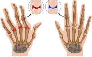 Упражнения для кистей рук при артрите
