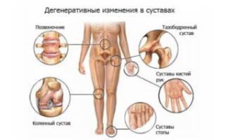 Псориатический артрит чем отличается от болезни бехтерева