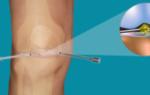 Отзывы об артроскопии коленного сустава в спб